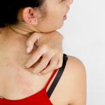 Uwaga problem! Atopowe zapalenie skóry