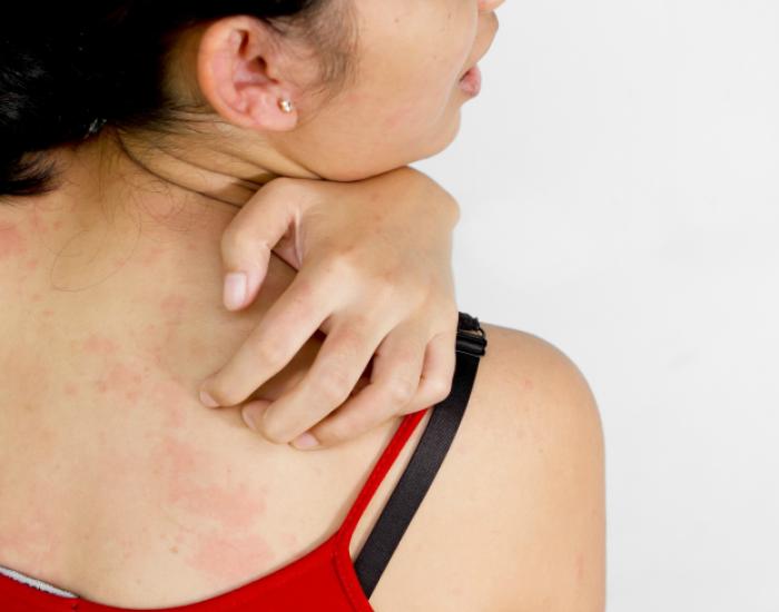 choroby skóry typowe objawy